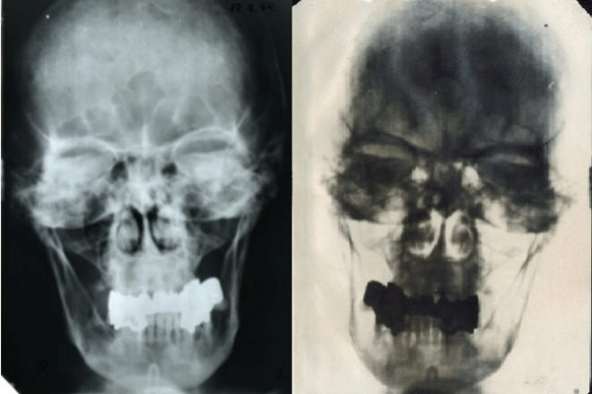 Radiografía de Hitler
