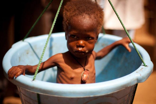 Zakia, con desnutrición severa, en la báscula del Centro de desnutridos de Zinder.