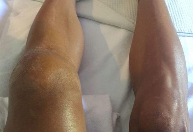 Philippe Gilbert enseña su rodilla rota en redes sociales.