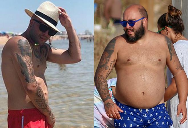 Gran perdida de peso por operacion estomago