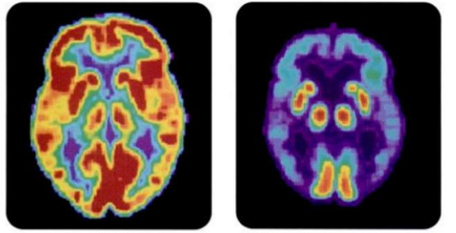 A la izquierda, un cerebro sano; a la derecha, uno con enfermedad de Alzheimer.