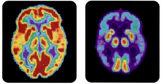 A la izquierda, un cerebro sano; a la derecha, uno con enfermedad de...