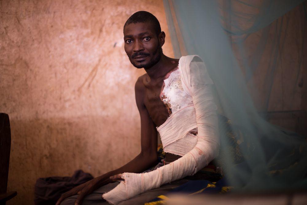 Kolo, enfermo de epilepsia herido al caer al fuego durante un ataque, en el centro sanitario de MSF en Mobayi-Mbongo.