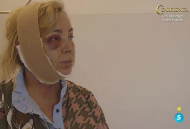 Primera imagen de Carmen Borrego tras su operación.