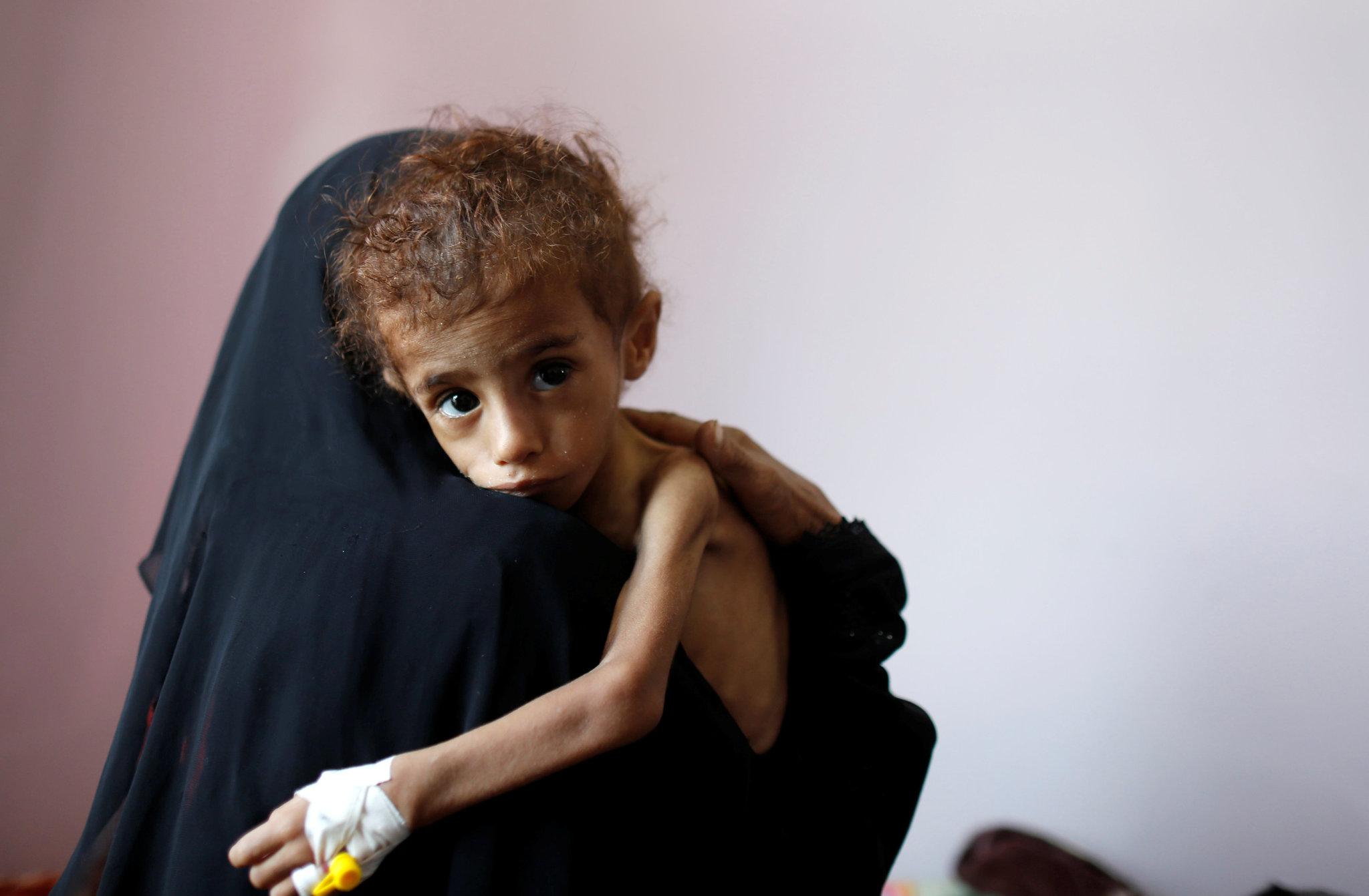 Una mujer abraza a un niño malnutrido en el hospital de Saná, Yemen.