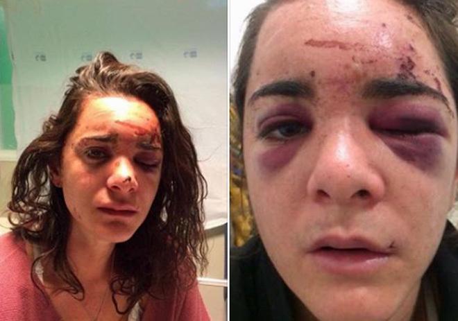 Andrea Scignano, en el hospital tras ser violada.
