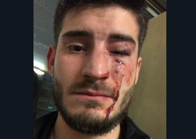 Foto del joven herido que él mismo ha difundido en Twitter