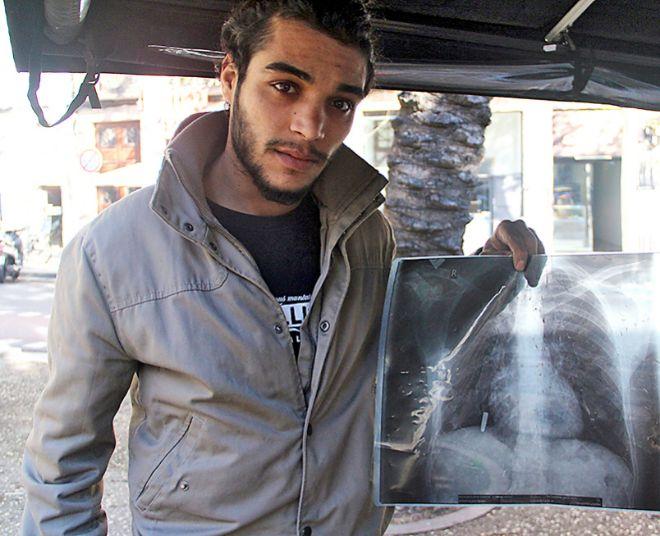 A Mohammad le queda una bala incrustada entre el pulmón y el abdomen.