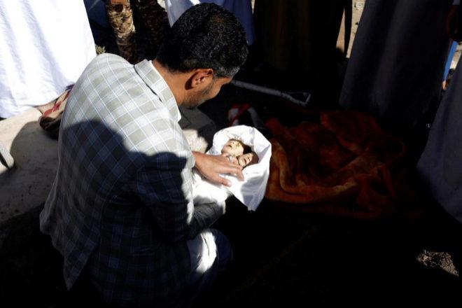 Familiares de los siameses de Yemen durante su funeral.