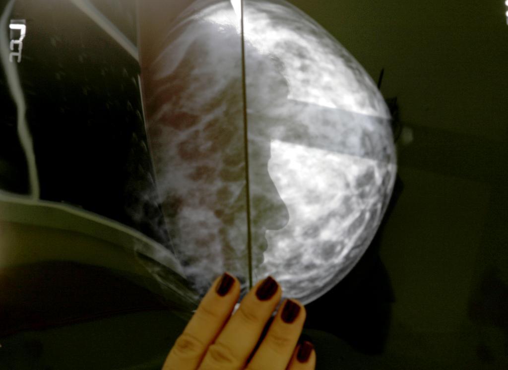Una mujer se somete a una mamografía en un hospital de Atenas