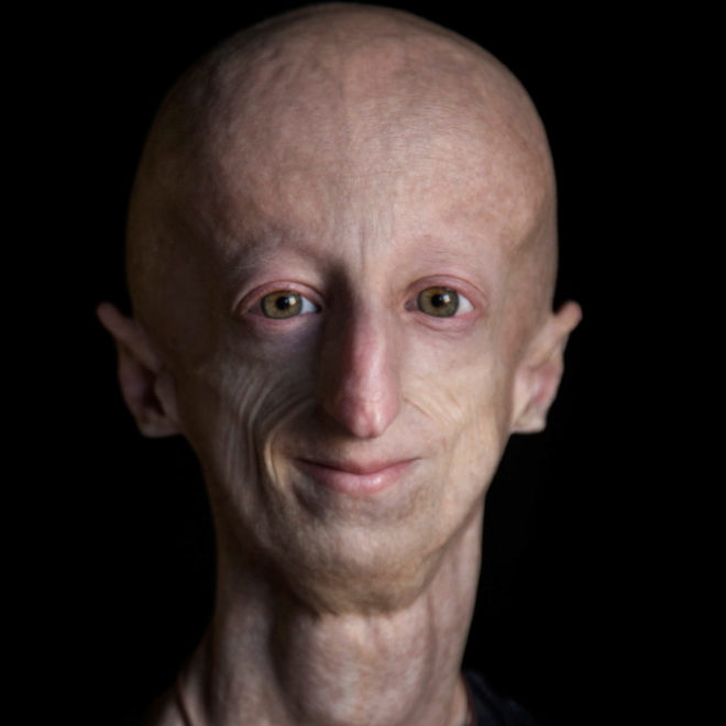 Se llama Sammy Basso, es italiano y ha logrado la proeza de cumplir 23 años, aunque su cuerpo, por la progeria, es el de un anciano de 80.