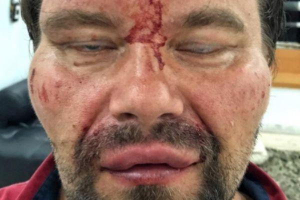 El periodista polaco que fue golpeado en Venezuela.