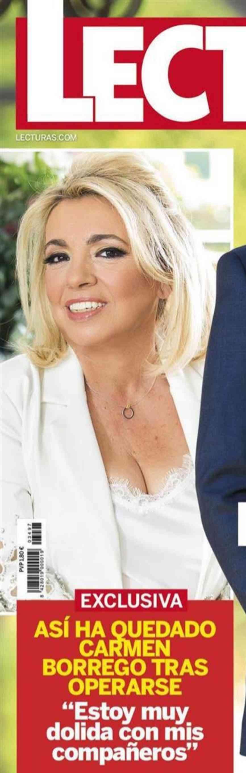 La nueva cara de Carmen Borrego, tras la segunda operación de papada