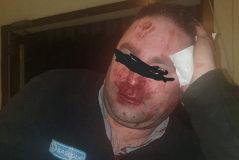 """El vigilante agredido por 20 'menas': """"Me patearon"""""""