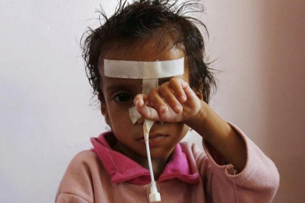 Un niño con malnutrición recibe cuidados en Saná (Yemen).
