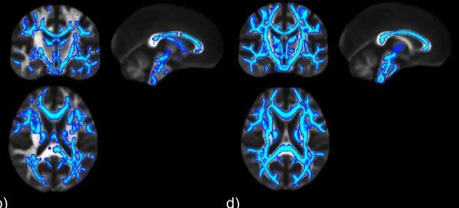Área del cerebro dañada en una persona alcohólica (izquierda) y en otra que lleva dos semanas sin beber.