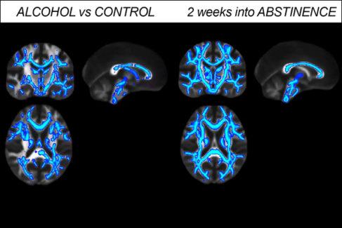 El alcohol machaca tu cerebro incluso después de dejar de beber
