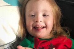 Muere una niña con síndrome de Down tras los golpes del novio de su madre