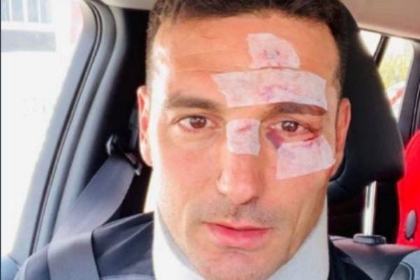 Un coche arrolla al seleccionador argentino de fútbol Lionel Scaloni cuando iba en bicicleta