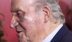 El Rey Juan Carlos, operado de un carcinoma en la mejilla