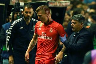 El Real Madrid: qué horror