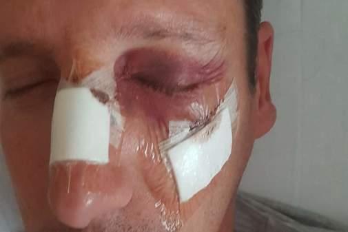 El banderillero Reyes Mendoza muestra sus lesiones en el ojo y cara.