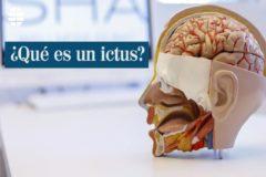 ¿Qué es un ictus?: síntomas, causas y secuelas