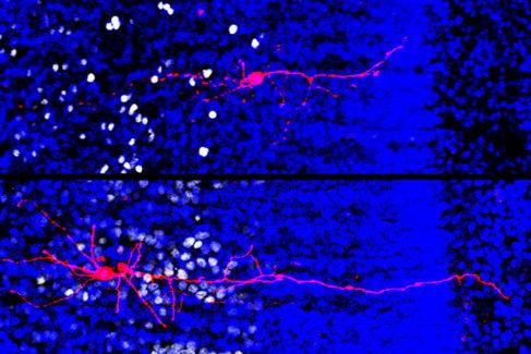 Neuronas excitadoras del córtex cerebral en desarrollo.
