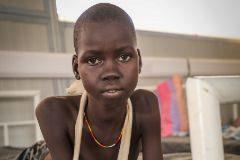 Awien Maguor, que recibe tratamiento en el hospital de MSF en Agach (Sudán del Sur).