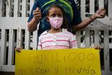 Protestas de pacientes de los pequeños enfermos en el hospital infantil de Caracas.