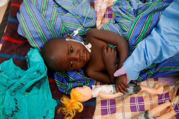FILE PHOTO: Furana Katungu, 2, who is confirmed to be suffering from...