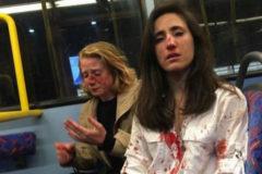 Melania Geymonat y su novia tras la brutal agresión que sufrieron en un autobús.
