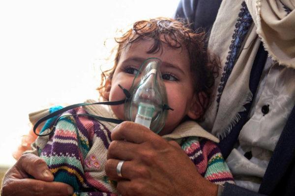 Un niño yemení es tratado en un hospital de Saná.