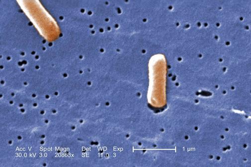 Bacterias de la familia 'Enterobacteriaceae'.
