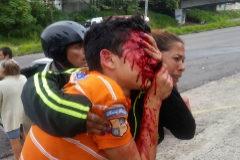 El joven Rufo Chacón tras ser disparado en la cara por la policía en Venezuela.