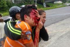 Ola de solidaridad con el menor que perdió los ojos por la represión