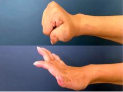 13 tetrapléjicos recuperan la función de brazos y manos con una nueva cirugía