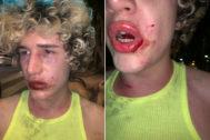 La víctima de la agresión en Valencia.