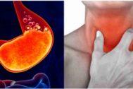 La acidez, la sensación de ardor, la afonía y el dolor abdominal son algunas de los síntomas de que el esfínter esofágico no funciona de forma correcta.