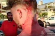 Heridas en la cabeza del joven británico producidas por las agresión de los trileros.