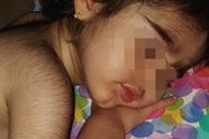 O.C., niña de 26 meses de edad, que padece de hipertricosis.
