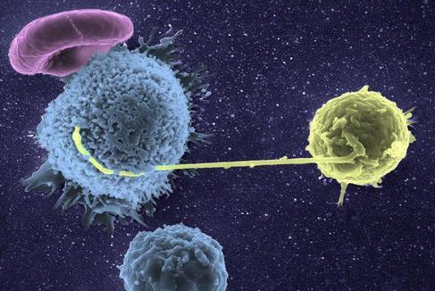 Virus del sida infecctando un linfocito.