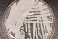 Cultivo en el laboratorio de una cepa del superhongo 'Candida auris'.