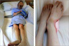 Juanjo C. en atado en la cama, en una foto tomada por la familia. (A la derecha), los pies del hemipléjico en los que se aprecia que tiene una úlcera.