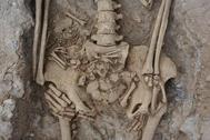 Los huesos de la mujer, que se encontraba en el último mes de gestación, y su feto.