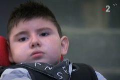 Muere Nolan Moitti, el niño francés que comió una hamburguesa con E. Coli hace ocho años