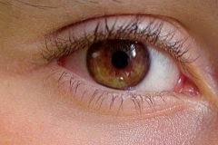 Una lente acomodativa desarrollada por investigadores del CSIC imita al cristalino.