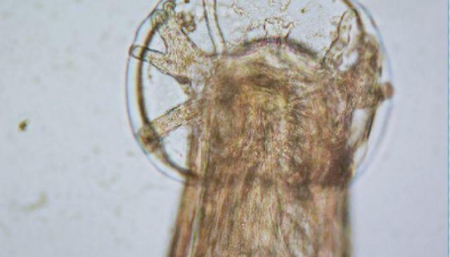 es parásito de gusano
