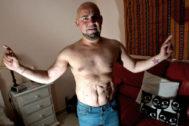 Luis Rodríguez, con cinco trasplantes de riñón, protagonista del reportaje galardonado publicado por EL MUNDO.