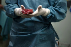 Un hígado a punto de ser transplantado.